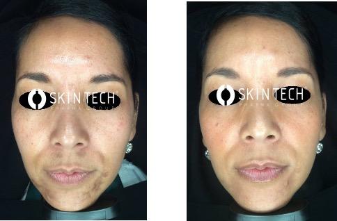 Voor en na foto bene bellum melasma