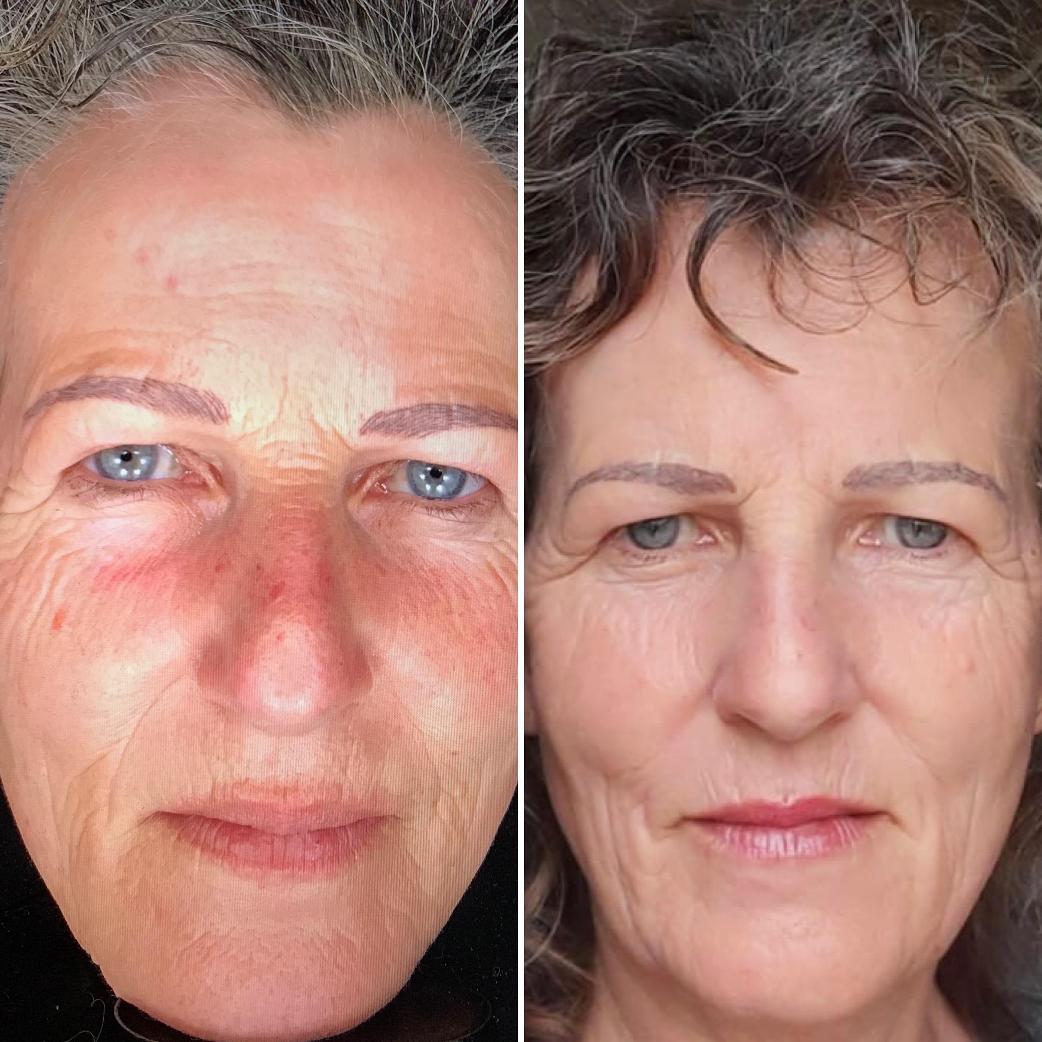 voor en nafoto er:bium yag fractioneel huidverjonginglaser