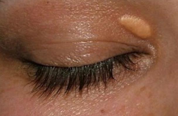Xantlasma op ooghoek