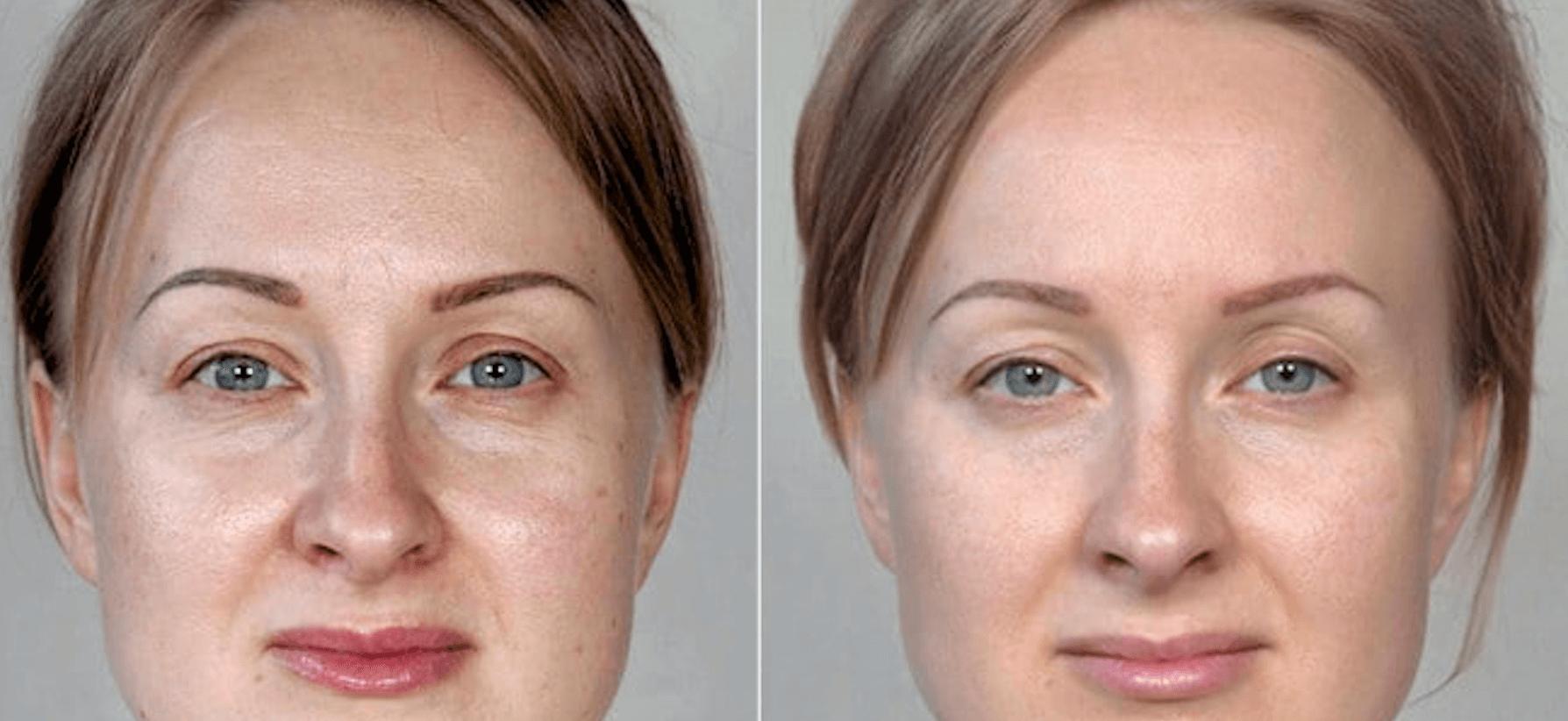 huidverjonging-vrouw-rrsskinboosters