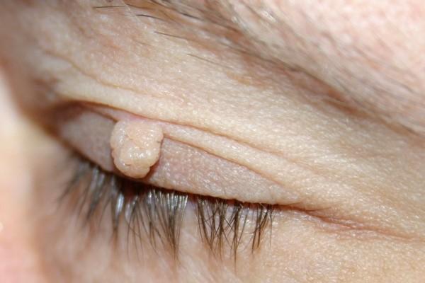 Steelwratje op de ooglid