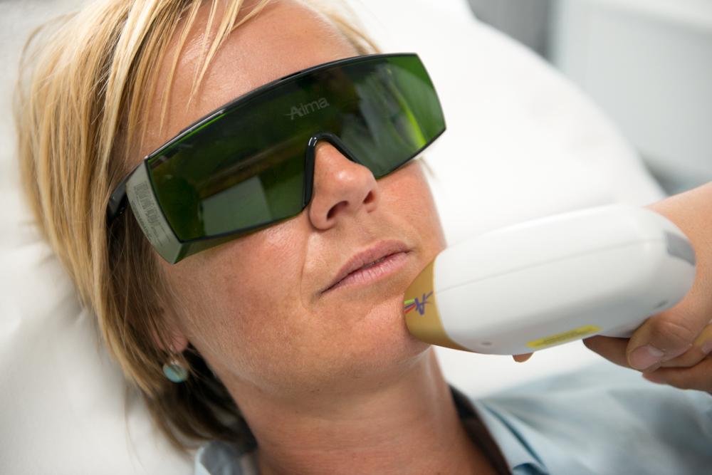 laser-ontharing-vrouw-op-kin